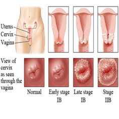KUALA LUMPUR: Women can find out if they are at a higher risk of developing cervical cancer through a new human papillomavirus (HPV) test. Health Guru, Health Class, Health Trends, Health Fitness, Womens Health Magazine, Cervical Cancer, Endometrial Cancer, Ovarian Cyst, Breast Cancer