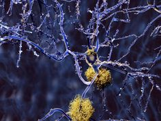 Blocking enzyme 'dramatically reverses' Alzheimer's in mice