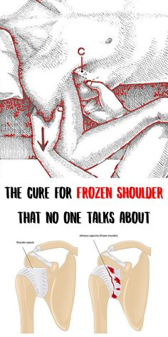 The Cure for Frozen Shoulder That No One Talks About