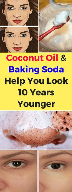 Oil & Baking Soda Help You Look 10 Years Younger! Coconut Oil & Baking Soda Help You Look 10 Years Younger! Coconut Oil & Baking Soda Help You Look 10 Years Younger! Baking With Coconut Oil, Natural Coconut Oil, Coconut Oil For Acne, Benefits Of Coconut Oil, Natural Skin, Natural Facial, Natural Beauty, Benefits Of Baking Soda, Coconut Oil Beauty