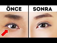 Gözlerinizin Daha Genç Görünmesi İçin 1 Dakikalık Japon Tekniği – Video How to get rid of wrinkles under your eyes? While looking in the mirror, our eyes seem to be tired and sad, Acne Treatment, Massage Facial, Special Massage, Types Of Acne, Beauty Youtubers, Clean Pores, Bright Skin, Wrinkle Remover, Lower Abs