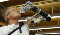 FDA gives approval for DEKA prosthetic arm controlled by muscle impulses