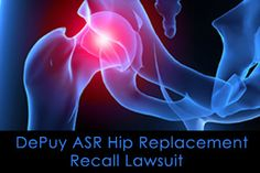 DePuy ASR Hip Implant Lawsuits Allege The Metal-On-Metal Hip Implants Were Defectively Designed And Recipients Suffered Metalosis and Severe Pain From Revision Surgery.