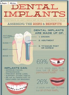Some Dental Implants Facts #knowledge #healthyteeth