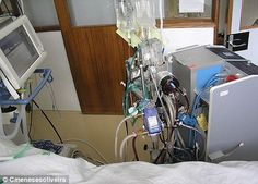 Miracle machine makes heroic rescues – and leaves patients in limbo Artificial Intelligence Algorithms, Abnormal Cells, Bypass Surgery, Miracle, Dialysis, Just Giving, Lunges, Science And Technology, Cancer