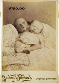 A Victorian Post Mortem of conjoined twins