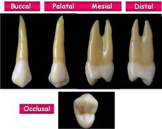 Anatomy of Bicuspid