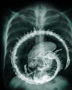 Halloween-Alien x-ray