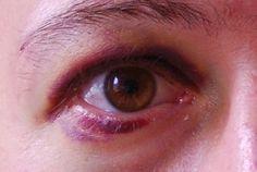 Os Meus Remédios Caseiros: Remédios caseiros para o olho roxo