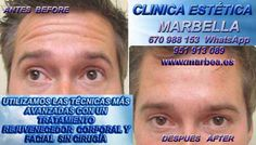 BOTOX MARBELLA | CLINICA ESTETICA MARBELLA | BOTOX FRENTE MARBELLA http://www.marbea.es BOTOX MARBELLA- CORRECCIÓN LAS ARRUGAS FACIAL | BOTOX MARBELLA .ELIMINACION DE ARRUGAS| EXPERTOS Y ESPECIALISTAS EN ELIMINACION DE ARRUGAS CON BOTOX MARBELLA| BOTOX MARBELLA - CORRECCIÓN LAS ARRUGAS | TRATAMIENTO DE ARRUGAS FACIALES CON BOTOX MARBELLA| ELEMINA LAS ARRUGAS CON BOTOX- CLINICA ESTETICA MARBELLA | BOTOX MARBELLA - CORRECCIÓN DE LAS ARRUGAS FACIALES TRATAMIENTO CON BOTOX MARBELLA PARA LAS…