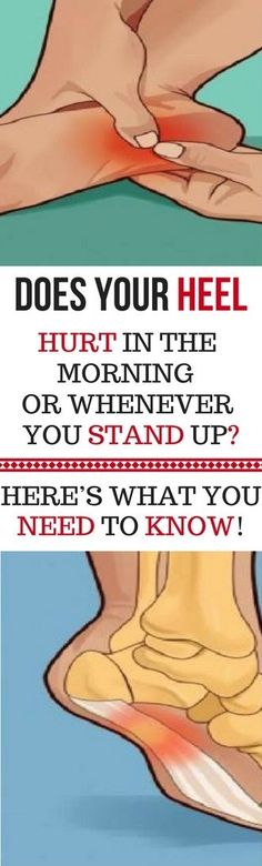 DOES YOUR HEEL HURT IN THE MORNING OR WHENEVER YOU STAND UP? HERE'S WHAT YOU NEED TO KNOW -
