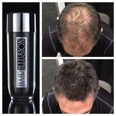 (Jet Black) Hair Illusion Premium Hair Loss Concealer with Natural Keratin Fibers for Men & Women Hair Remedies For Growth, Hair Loss Remedies, Hair Growth, Hair Loss Cure, Prevent Hair Loss, Hair Cure, Keratin, Concealer, Hair Illusion
