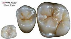Dental Art, Dental Hygiene, Get Whiter Teeth, Dental Anatomy, Dental Technician, Dental Laboratory, Smile Teeth, Oral Health, Dentistry