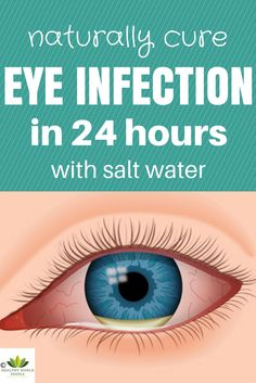A chalazion cyst is a bump in the eyelid caused by an inflamed gland. It causes pressure on the eye, redness, and irritation.
