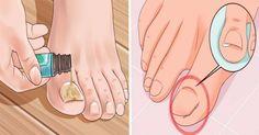 remove ingrown toenail