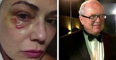 Justiça aceita denúncia contra ex- marido de Luiza Brunet por agressão