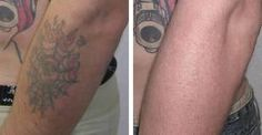 49 Best Laser Tattoo Removal images | Laser tattoo, Tattoo removal ...