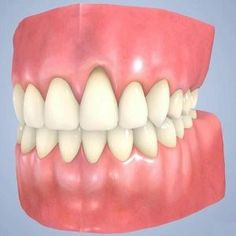 I need a dentist 2 wisdom teeth removal,teeth starting to rot natural dental health,find a dentist common dental problems. Natural Home Remedies, Natural Healing, Herbal Remedies, Health Remedies, Health Heal, Health And Wellness, Dental Health, Dental Care, Receding Gums