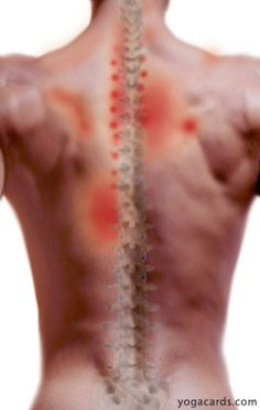 Upper Back Pain find out how to relieve it with yoga..this is really helping with my back pain from the fractures on my spine