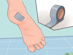 How to Get Rid of a Wart at the Bottom of Your Foot. Plantar warts, medically known as verruca plantaris, are small, non-cancerous growths on the bottom of the foot. They are caused by the human papillomavirus (HPV), which enters through a. Foot Warts, Warts On Hands, Warts On Face, Plantar Wart Removal, Planters Wart, Get Rid Of Corns, Corn Removal, Exercises, Health