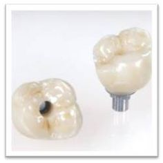 Screw Retained Molar