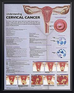 Understanding Cervical Cancer anatomy poster defines cervical cancer and lists risk factors, such as human papillomavirus (HPV). Remember January Cervical Cancer Awareness Month