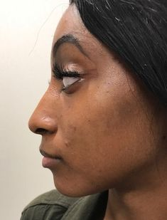 Before photo of 26 year old female treated with Voluma for cheek enhancement Cheek Contouring, Facial Fillers, Face Facial, Body Sculpting, Surgery, Cosmetics, Female, Hair, Strengthen Hair