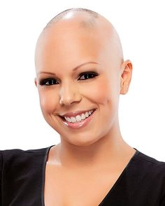 Melissa's testimonial: I was diagnosed with alopecia areata at the age of 2. Alopecia has affected my life in many ways.  I found confidence in myself once I accepted that alopecia is part of my life and that being different is OK. I have fun with it now and change my hair with every outfit.