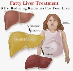 Fatty Liver Treatment - 5 Fat Reducing Remedies For Your Liver
