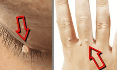 Warts are unsightly changes to the skin caused by the human papiloma virus (HPV), which consists of over 100 different types. Each type of HPV affects everyone differently, depending on the strength of the immune Vitiligo Treatment, Hpv, Skin Tag, Tattoo Removal, Tips Belleza, Natural Home Remedies, The Cure, Beauty Hacks, Beauty Tips