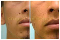 This Hispanic man is shown before and 7 months after two mole excisions, one on the right side of his nose and the other on his central chin, with good aesthetic improvement and minimal scarring. Mole Removal At Home, Freckle Remover, Hispanic Men, Before After Photo, 7 Months, Plastic Surgery, Freckles, Facial, Minimal