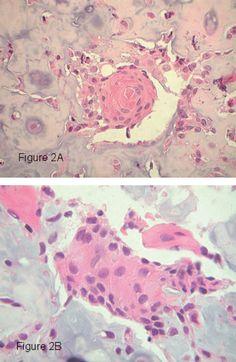 farmaci per prostata nella colica report
