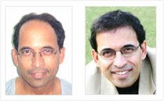 Harsha Bhogle: Hair Regrowth Results Visit http://www.enhanceclinics.in/hairlossmain for more.
