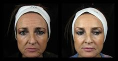 Non-surgical facelift and facial revolumization with NEW Juvederm Voluma - now available at VIVE! Cheek Injections, Non Surgical Facelift, Medical Weight Loss, Facial, Facial Care, Facials, Face Care, Face