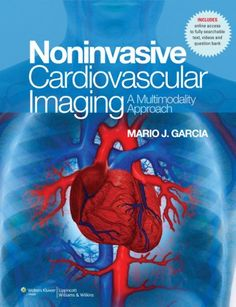 Maders understanding human anatomy and physiology 7th edition pdf noninvasive cardiovascular imaging pdf fandeluxe Gallery
