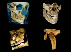 Dental Software | 3D Imaging | Cone Beam CT Units | Carestream Dental