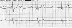 Great Nursing Care Plan for Pacemaker