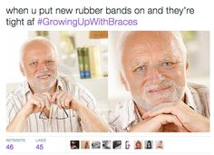 Putting on fresh rubber bands before theyve stretched out: Braces Meme, Braces Tips, Braces Off, Teeth Braces, Braces Problems, Band Problems, Flute Problems, Palate Expander, Braces Rubber Bands