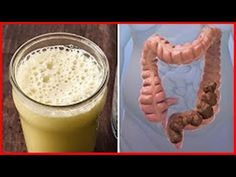 Remedies For Colon Cleanse Many people have chronic constipation, irritable bowel syndrome, leaky gut, and other problems with the digestive system. Because the col. Homemade Colon Cleanse, Colon Cleanse Detox, Natural Colon Cleanse, Natural Detox, Lemon Cleanse, Body Cleanse, Leaky Gut, Cleaning Your Colon, Colon Cleansers