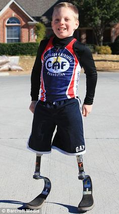 """""""Nine-year-old Cody McCasland has more than 20 artificial legs so he can take part in all sports and beat his able-bodied friends--despite having his own amputated.""""    --well, there goes MY excuse!"""