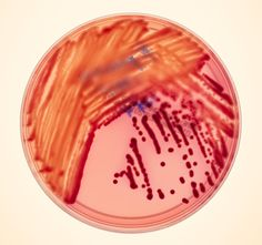 Scientists Stalk a Lethal Superbug with Killer's Own DNA:  KPC, carbapenem-resistant Klebsiella pneumoniae can hitch a ride on healthy people, setting up residence on their skin. It can spread to people with weak defenses, bloom into an overwhelming infection that spreads via bloodstream into whole body, swiftly shutting down one organ after another. In past decade, KPC has evolved ability to withstand every known antibiotic. Roughly half of people who develop an active infection will die.