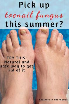 Fungal Nail Treatment, Toenail Fungus Remedies, Toe Fungus, Natural Health Remedies, Feet Care, Natural Treatments, Toe Nails, Fungi, Beauty Skin