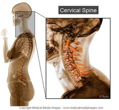 Color X-Ray of the Cervical Spine showing the Bone Anatomy in Color. Vertebrae are labeled. Ideal for Websites and Publications.