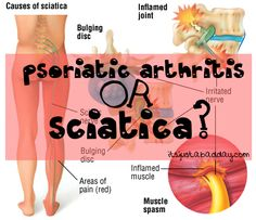 Psoriatic Arthritis Flare Up in My SI Joint? Psoriasis Arthritis, Arthritis Relief, Rheumatoid Arthritis Symptoms, Arthritis Remedies, Pain Relief, Inflammatory Arthritis, Complex Regional Pain Syndrome, Arthritis