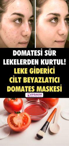 Drive the tomatoes to get rid of the stains! Leke giderici cilt beyazlatıcı domates maskesi Drive the tomatoes to get rid of the stains! Tomato Mask, Brown Spots On Face, Blackhead Mask, Skin Mask, Health Remedies, Beauty Skin, Skin Care Tips, Beauty Hacks, Beauty Tips