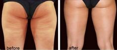 Cellulite+-+Before+and+After