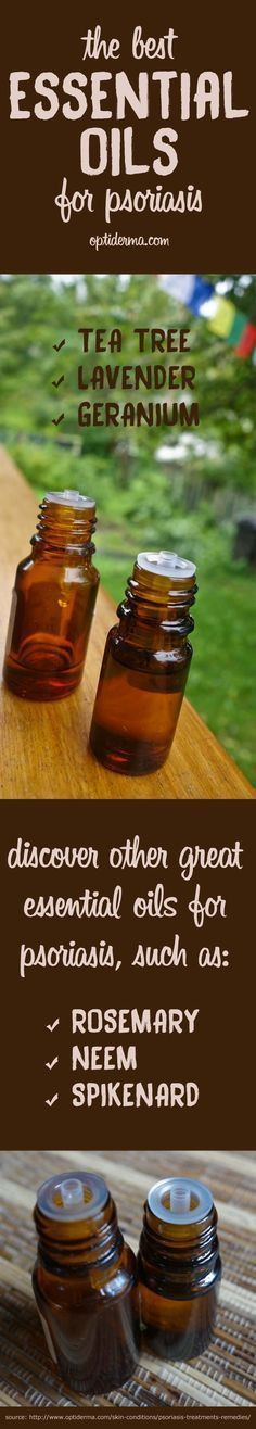What are the Best Essential Oils for Psoriasis & Scalp Psoriasis? Learn about essential oils and how to use them to soothe the symptoms of psoriasis. Tea tree, lavender & geranium essential oils are popular ones. What about lesser-known neem and spikenard oils? Source: http://www.optiderma.com/skin-conditions/scalp-psoriasis-essential-oils/