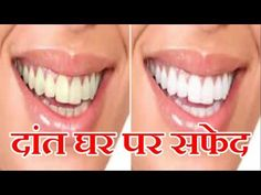 Whiten your Yellow Teeth Naturally at home in hindi