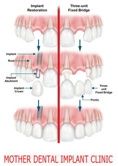 Dental Implants are actually a series of procedures used to recreate a missing tooth. The key part of a #dental #implant #india is the initial titanium implant which sits in the original tooth's bone pocket, or alveolus.