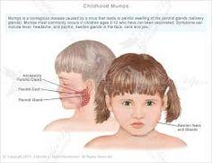 mumps pictures - Buscar con Google